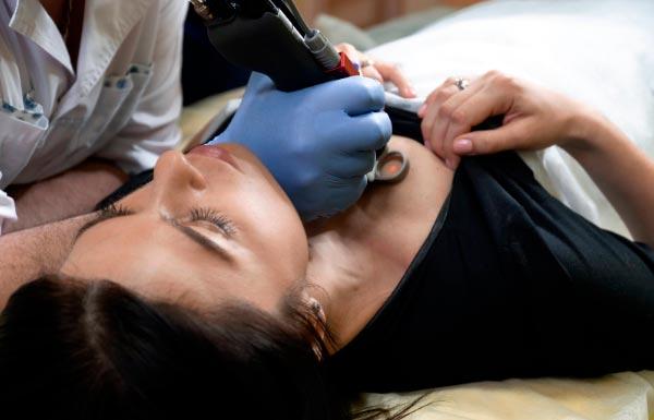 tratamientos estéticos